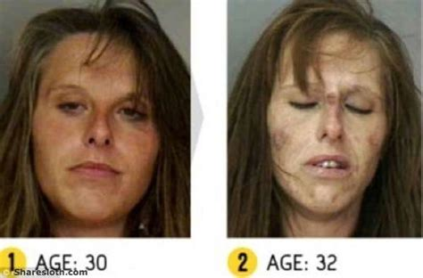 heroin vorher nachher shocking before and after meth photos sharesloth