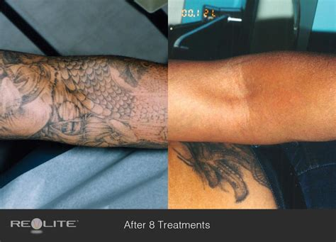 good tattoo removal laser removal before and after 8 treatments