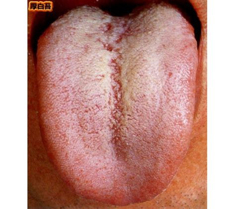 pale tongue pin white coating on tongue causes symptoms treatment pictures on