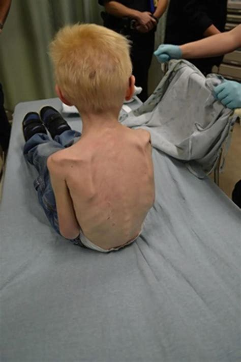 Boy Found In Closet by Starved 5 Year Kept Him Locked In