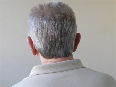 gray hair turning dark again new cancer drug leaves scientists confused after turning