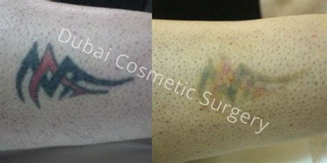 tattoo removal cream dubai laser removal dubai abu dhabi dubai cosmetic surgery