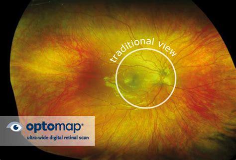 Patient Comfort Introducing The Optomap Daytona Optometrist Eye Doctor