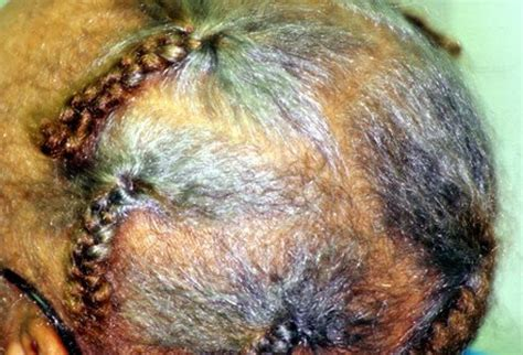 Types Of Hair Loss Diseases by Hair Scalp And Nail Conditions Types Causes And Treatments