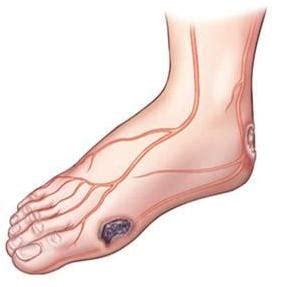 Krim Wajah Anuva perawatan kaki bagi penderita diabetes the knownledge