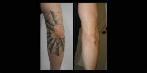 tattoo removal denver co laser removal mad medspa denver co