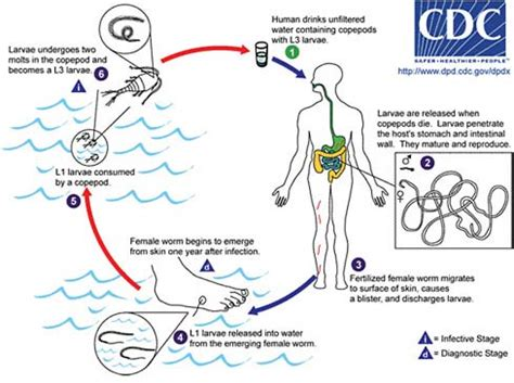 pathophysiology of leptospirosis diagram workshop overview the causes and impacts of neglected