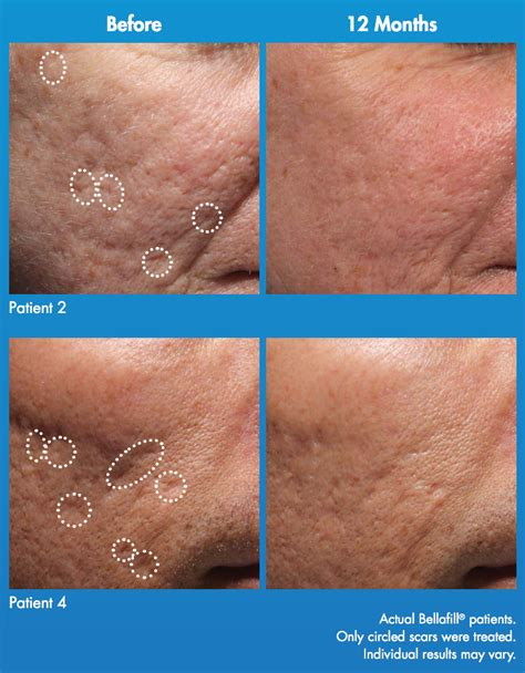 bellafill for results of acne scars acne scars plastic surgery mobile alabama plastic