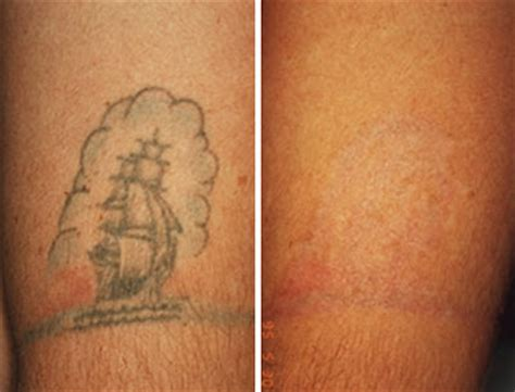 who removes tattoos japan laser removal