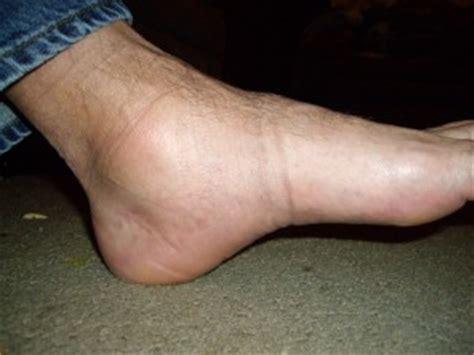 tendinite caviglia interna affect karam