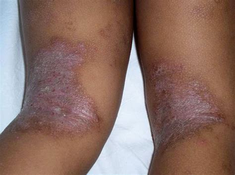 psoriasi interna propedeutica dermatologica medicina interna al d 237 a