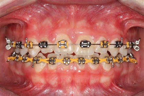 black color braces colorful braces are becoming a fashion statement