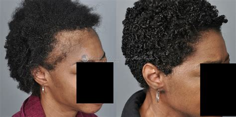 african american hair transplant african american female result by jerry cooley md forum