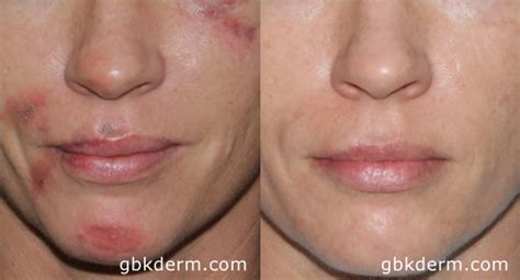 laser treatments for burns cosmetic laser dermatology