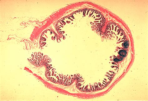 transverse section of ileum small intestine color images