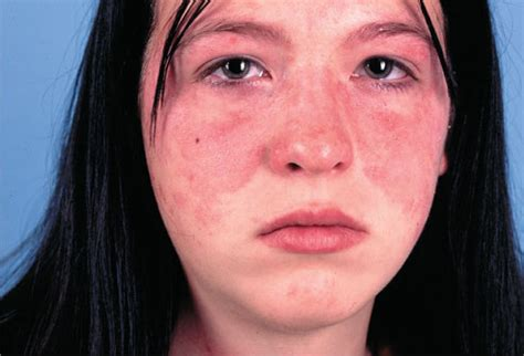 lupus rash pictures symptoms causes treatment