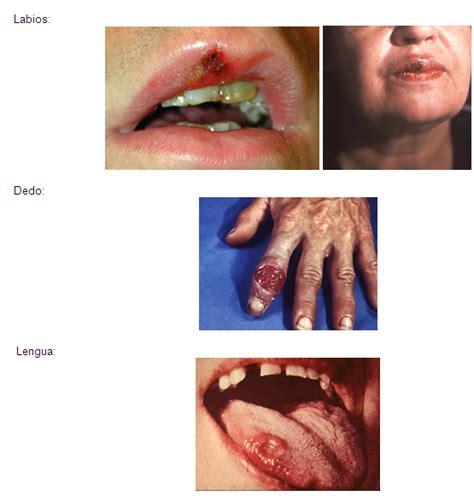www tipos de penes imgenes de enfermedades venereas hairstyle gallery