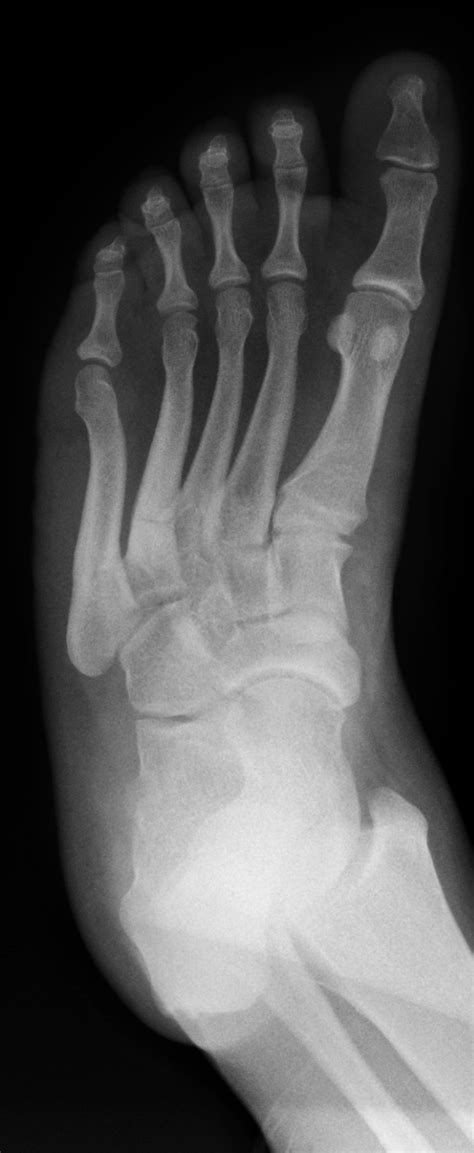 Stress fracture of 4th metatarsal | Image | Radiopaedia.org