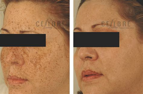 laser tattoo removal freckles acupuncture for acne scars laser freckle removal before