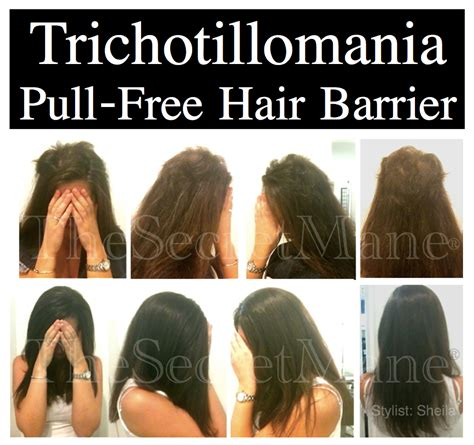 hair style for trichotillomania trichotillomania before and after pictures