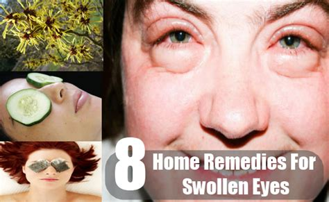 8 home remedies for swollen how to treat swollen