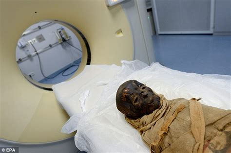 St Cat Kid child mummy gets a ct scan in a bid to uncover