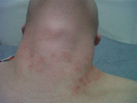 rash on neck pin hiv rash pictures image search results on