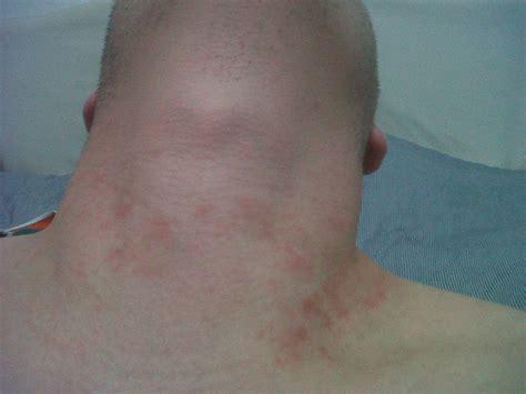 rash on s neck i a rash on an around my neck and same rash on my arms