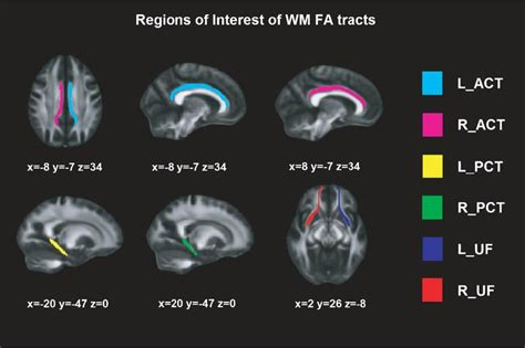verbal memory in parkinson s disease a combined dti and