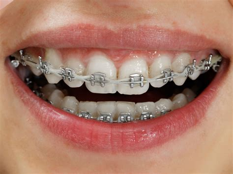 braces colors that make teeth look whiter metal braces the look orthodontics
