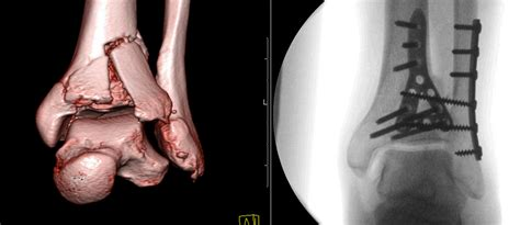 Tibial Plafond by Tibial Plafond Fractures Dr Christopher Lu Mbchb Frcsc