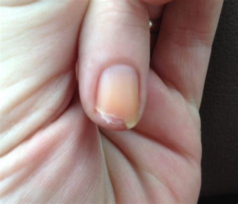 short nail beds nails long vs short pros and cons pointless cafe