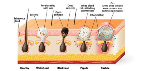 cystic acne diagram cystic pimple diagram types of best free home design