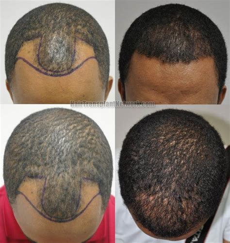 Hair Transplant Types The Best One by Hair Transplant Sessions 1 Grafts 1763 Total Hairs 3480
