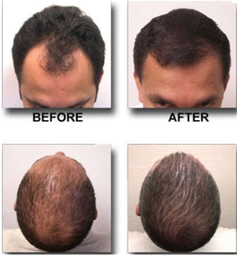 hair removal for mens head 24 best images about cosmetic procedures on pinterest