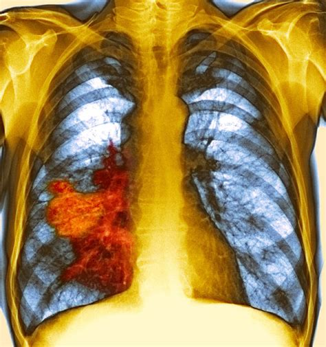b supplements lung cancer lung cancer risk increased in smokers taking vitamin