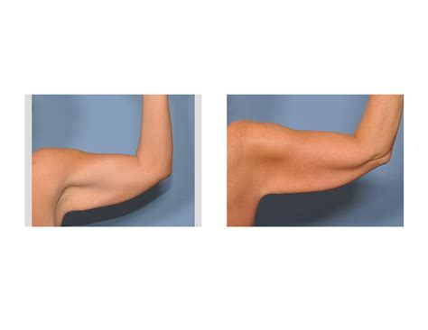 explore plastic surgery dr barry eppley arm lift saggy arms driverlayer search engine