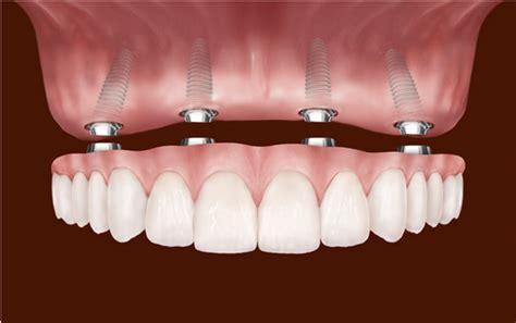 dental implants  edmonton ab dental implants cost