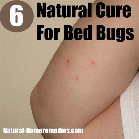natural remedies for bed bugs 6 natural cures for bed bugs how to cure bed bugs