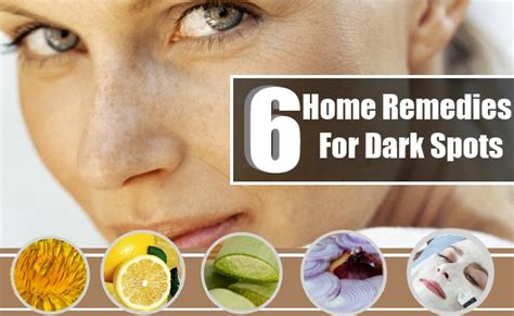 top 6 home remedies for spots on the care