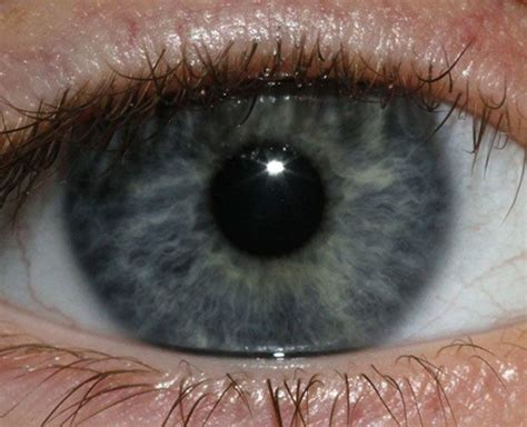 Laser Treatment To Turn Brown Blue Yes Or No by 1000 Images About Advances In Optometry On