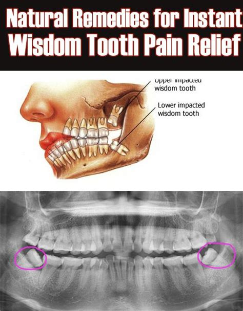 simple remedies for instant wisdom tooth relief