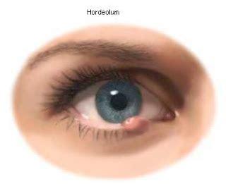 Obat Oles Untuk Mata Bintitan cara menghilangkan bintitan pada mata cara dan tips
