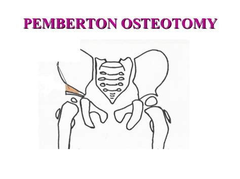 Shelf Procedure by Osteotomies Around Hip By Dr Gandhi