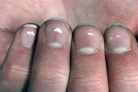 White Nail Beds by Seeing White Spots Health Nails Magazine