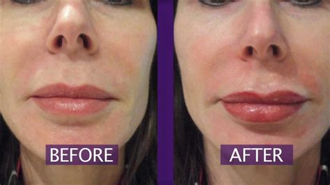 lip liner tattoo youtube permanent makeup lips permanent lip color youtube