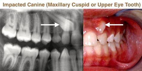 canine teeth image gallery impacted cuspid
