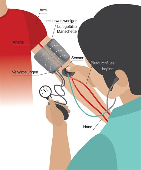 wann ist der blutdruck am höchsten blutdruckmessung beim arzt nach korotkoff