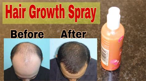 hair grower in the philippines asami hair grower philippines the best hair of 2017