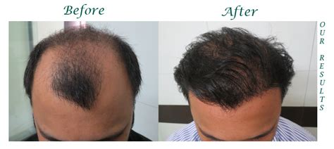 hair transplants 1000 graft coverage get up to 25 discount at hair senses spa salon